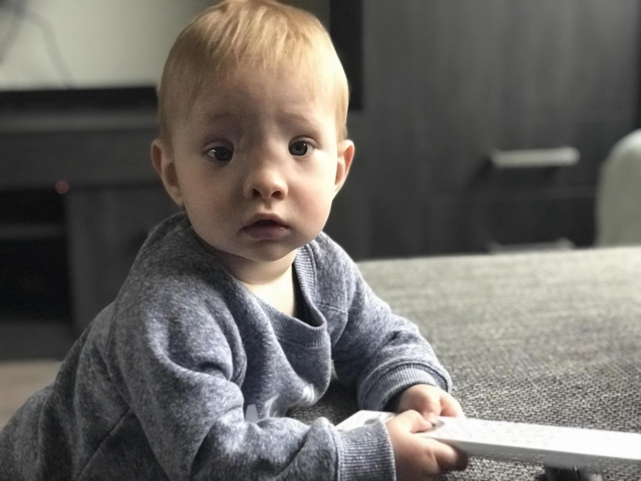 Bijzondere verhalen #15 - Lotte d'r zoon heeft een nasofrontale encephalocele